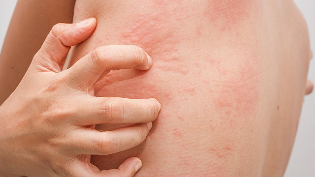 Fast Facts What Is Chronic Spontaneous Urticaria